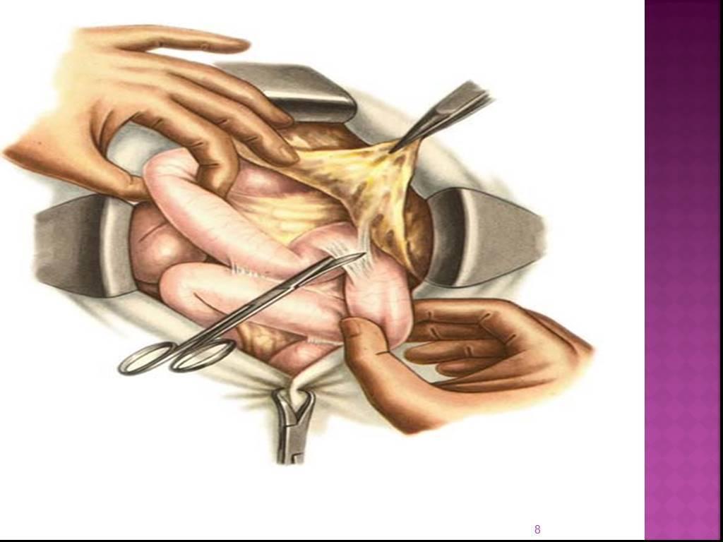 Чем лечить спайки кишечника после операции