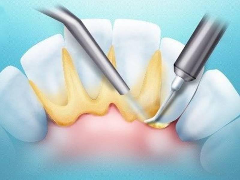 Удаление зубного камня дома – народные и профессиональные средства