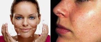 Как избавиться от черных точек на носу