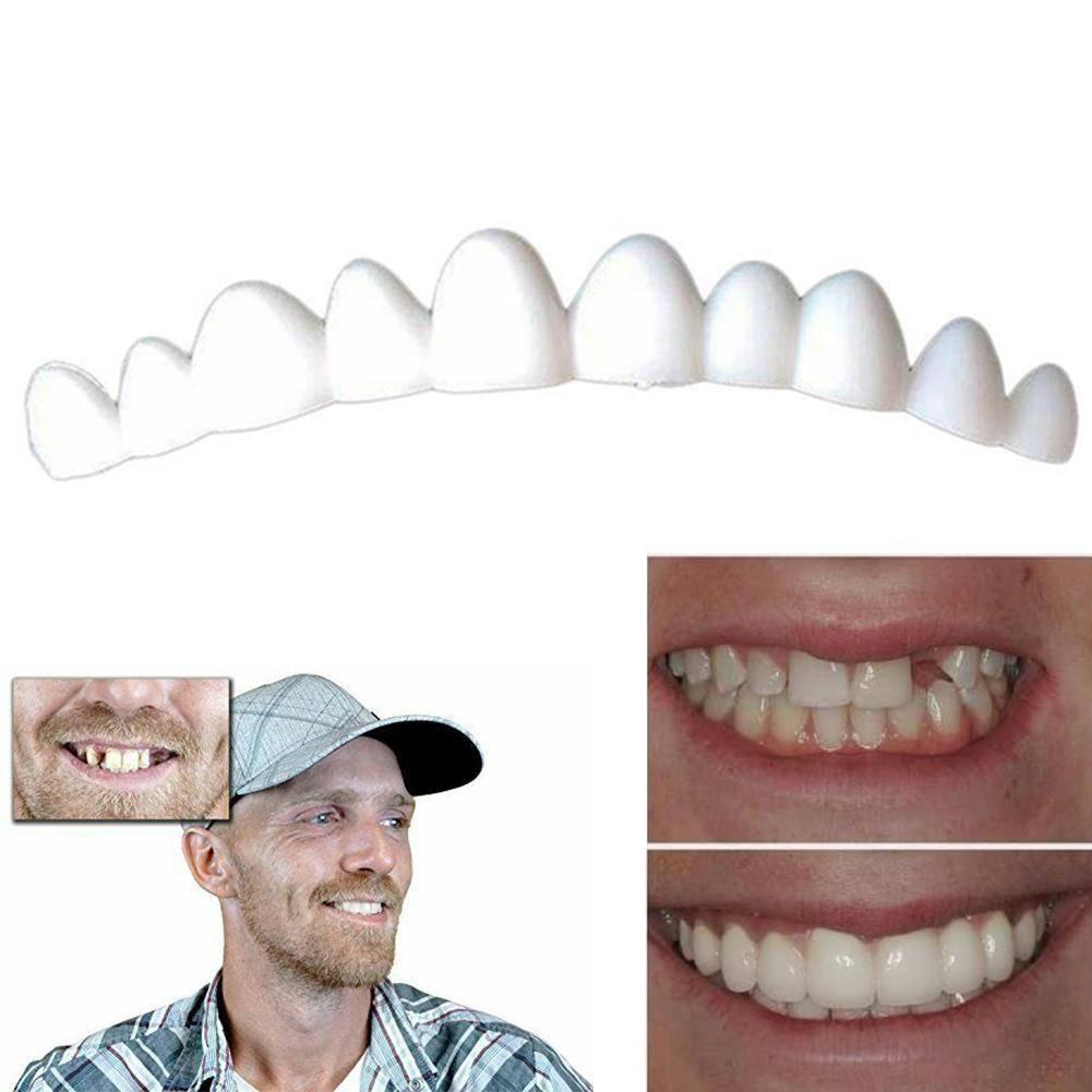 Плюсы и минусы керамических коронок на передние и задние зубы