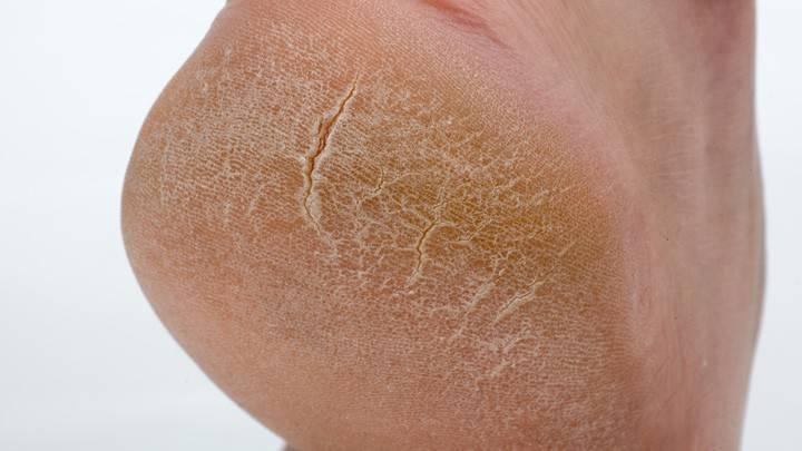 Почему шелушится и чешется кожа на ногах