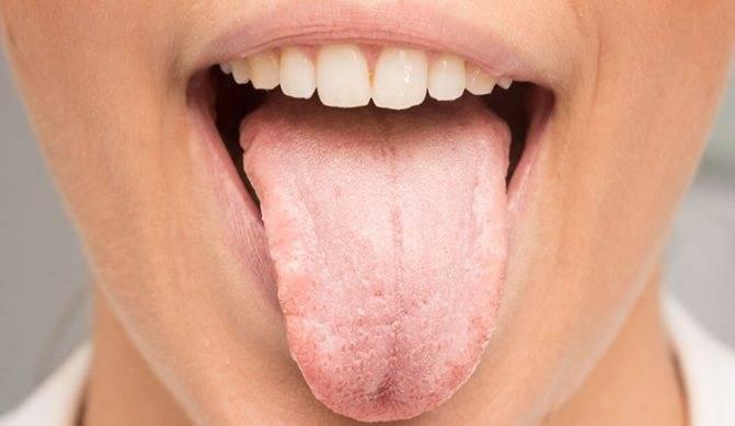 Как лечить стоматит во рту в домашних условиях — лучшие лекарства и методы