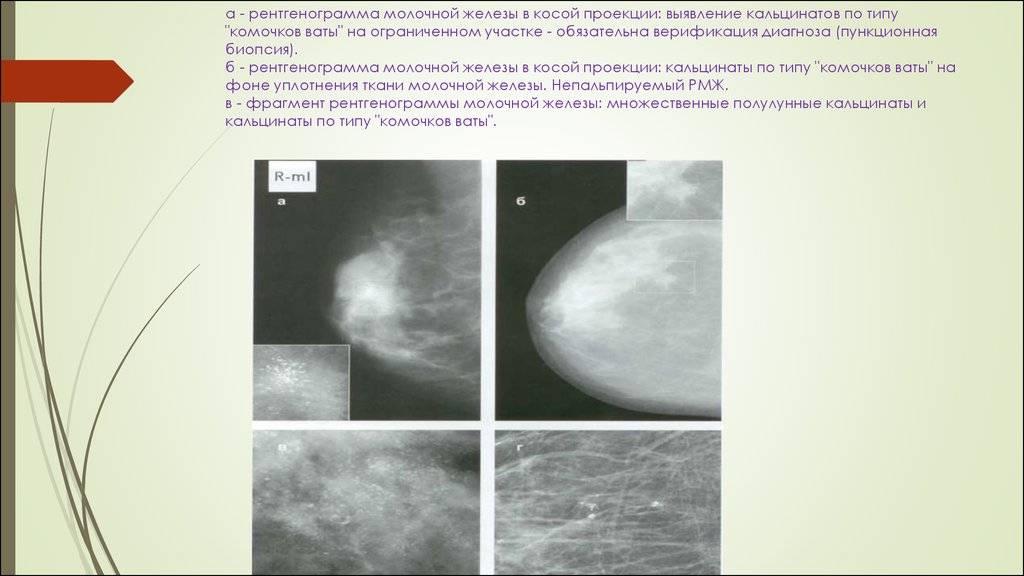 Кальцинаты в молочной железе у женщин: почему образуются и как обнаружить
