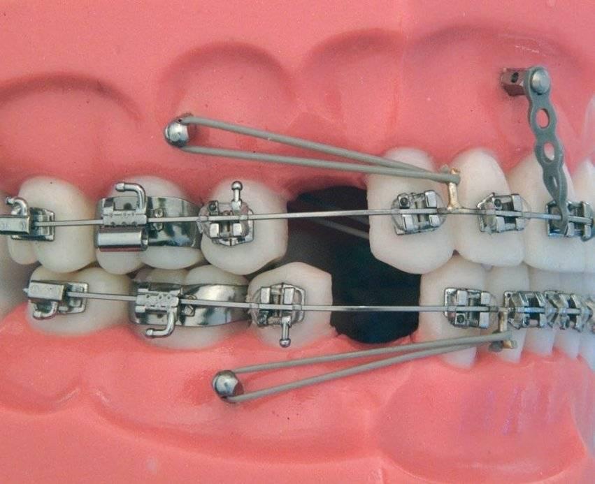 Лечение брекетами перед протезированием зубов