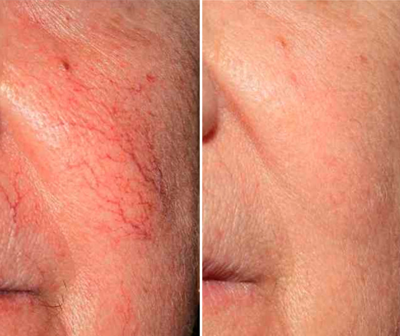 Лазерное лечение купероза: быстрое удаление сосудистых звездочек на лице лазером, отзывы