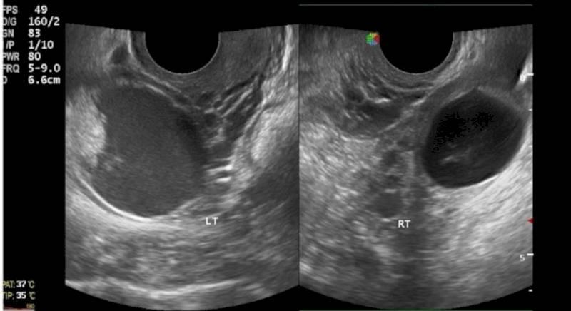 Что такое кистозная дегенерация правого яичника