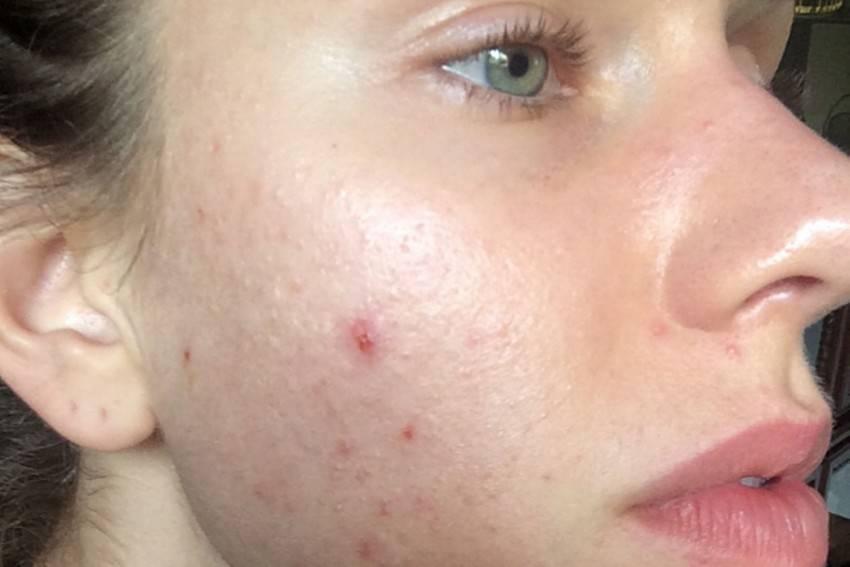 Как быстро убрать пятна от прыщей на лице