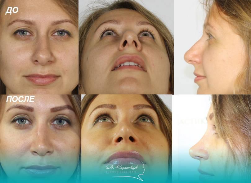 Возможные осложнения после септопластики перегородки носа