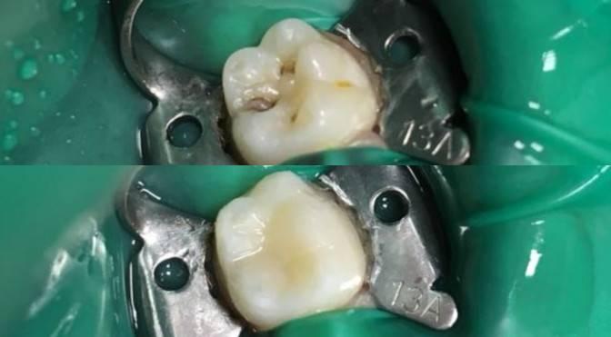 После пломбы почернел зуб у ребенка. почему зубы стали черными: причины потемнения эмали снаружи и изнутри, у корня и под пломбой