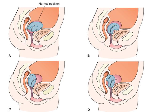Тело матки расположено в anteflexio что это