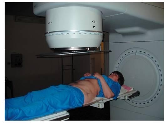 Сколько сеансов лучевой терапии назначают при раке шейки матки — анти-рак