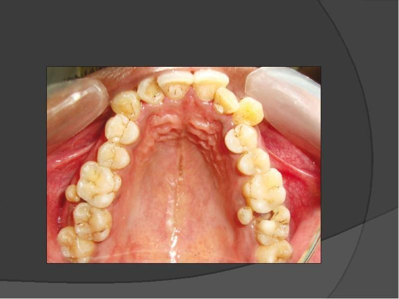 Много зубов во рту болезнь гипердонтия. понятие сверхкомплектных зубов (полиодонтии, гипердонтии) у человека: фото и лечение аномалии