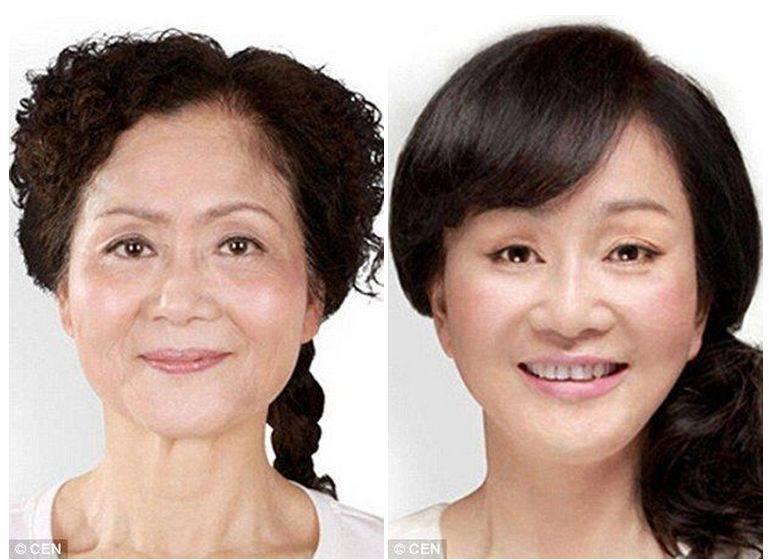 Пластика разреза глаз: популярные методики