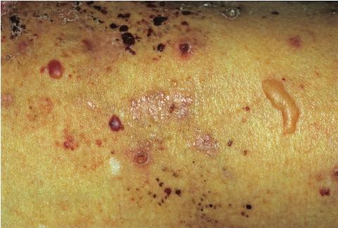 Буллезный дерматит