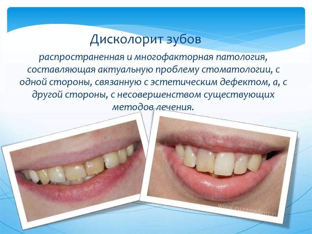 Что значит словосочетание «тетрациклиновые зубы», фото и методы лечения