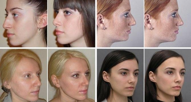 Когда нос не дышит: как исправить кривизну носовой перегородки. интервью с сандул александром