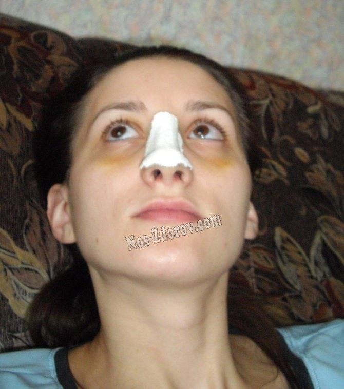 Дипроспан после ринопластики, а также наложение и снятие гипса у пациента