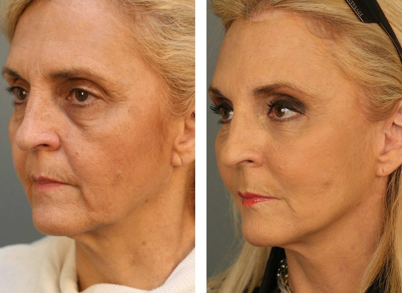Софтлифтинг: объемное 3d моделирование овала лица
