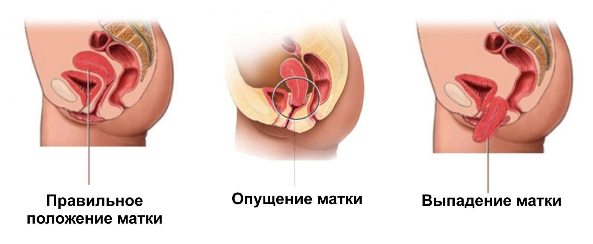 Диагностика и лечение послеродовой субинволюции матки