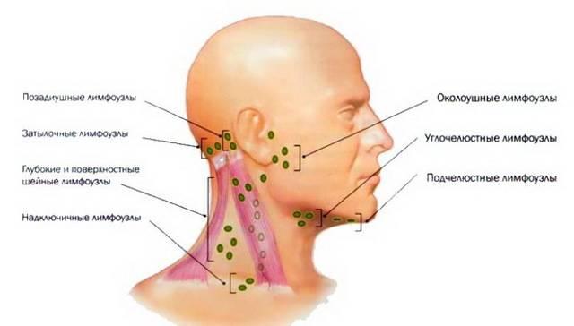 Увеличение лимфоузлов на затылке: причины, лечение