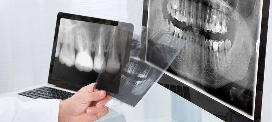 Методы лучевого исследования, применяемые в стоматологии - реферат по медицине, физкультуре и здравоохранению