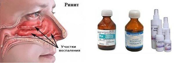 Лечение гайморита перекисью водорода по неумывакину отзывы