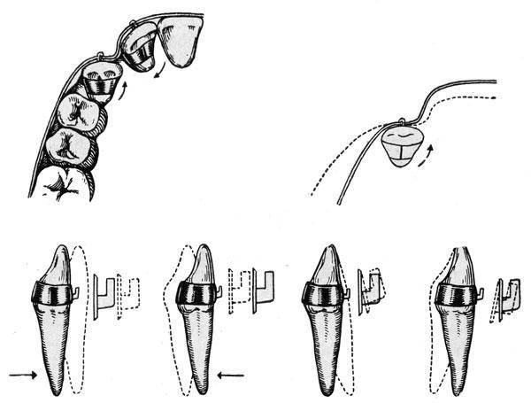 Виды современных несъемных ортодонтических аппаратов