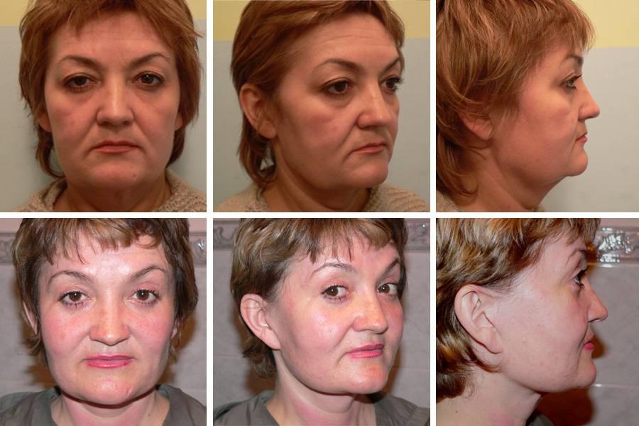 Фейслифтинг (подтяжка лица): как сохранить молодость и красоту