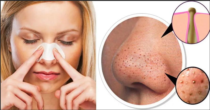 Домашние способы избавиться от черных точек на носу