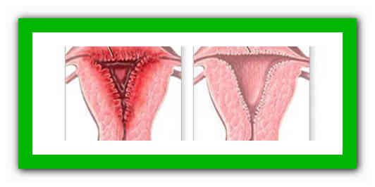 Патология эндометрия в постменопаузе – признаки возникновения и средства лечения