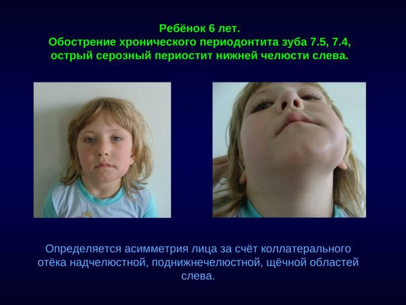 Мкб код периостит нижней челюсти