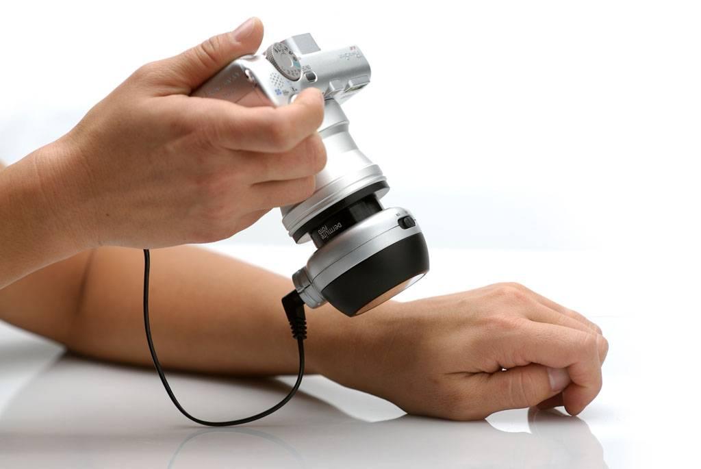 Цифровая дерматоскопия и картирование родинок