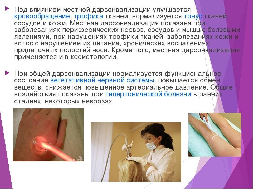 Лечение варикоза дарсонвалем