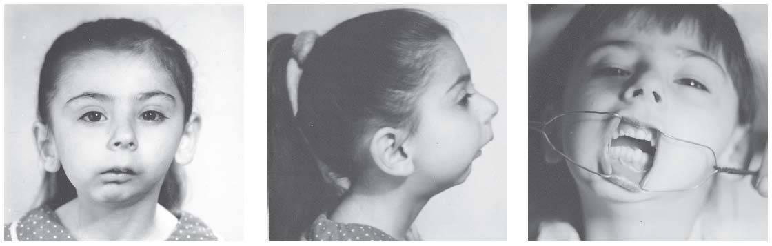 Недоразвитие нижней челюсти (микрогения, ретрогнатия): причины, симптомы, диагностика, лечение