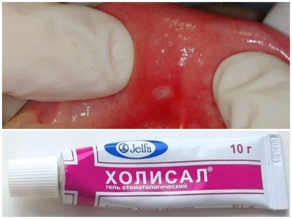 12 лучших гелей, облегчающих прорезывание зубов