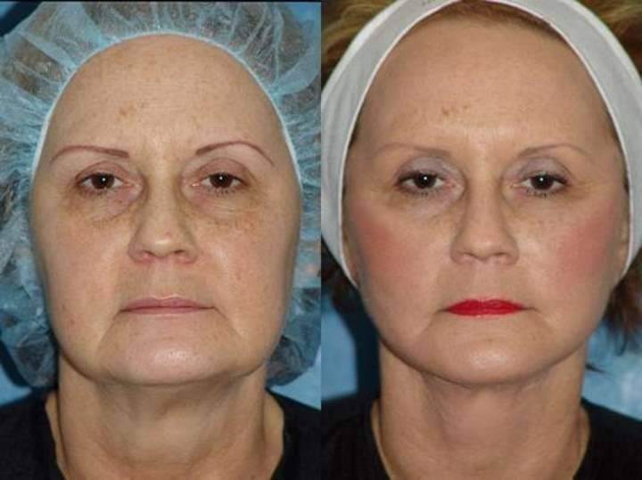 Причины образования брылей на лице, как подтянуть кожу?