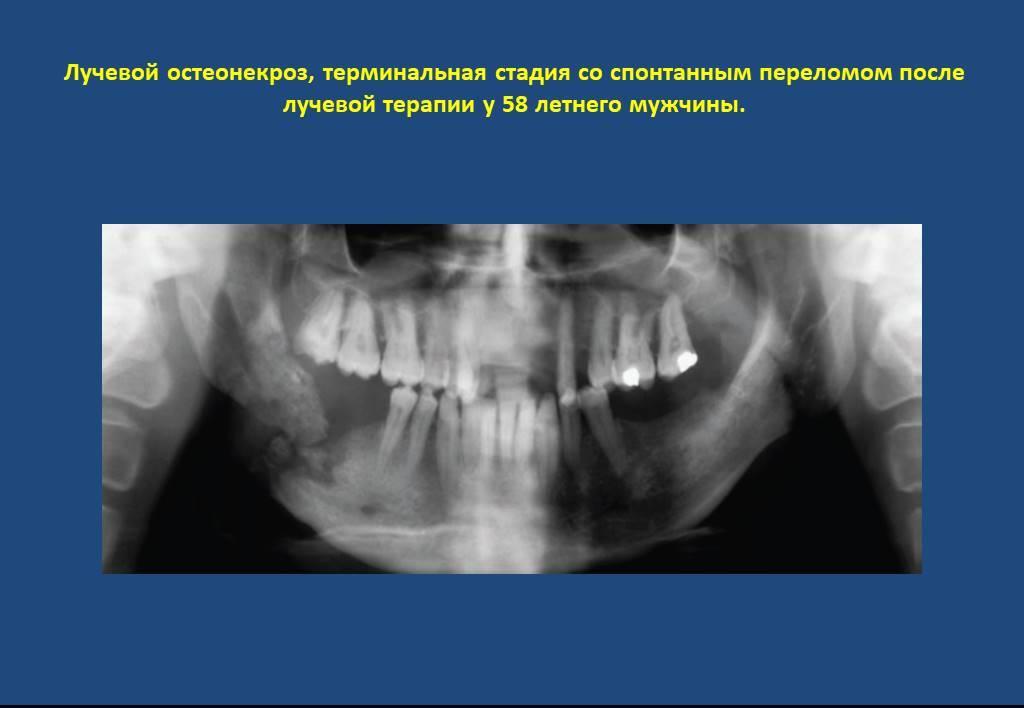 Остеонекроз челюсти симптомы