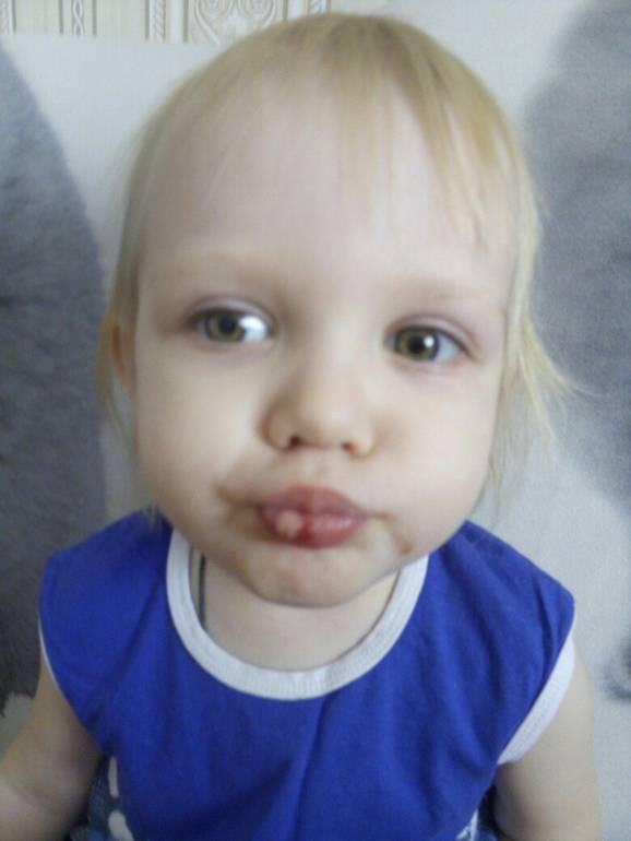 Ребенок разбил губу с внутренней стороны. что делать, если малыш разбил губу