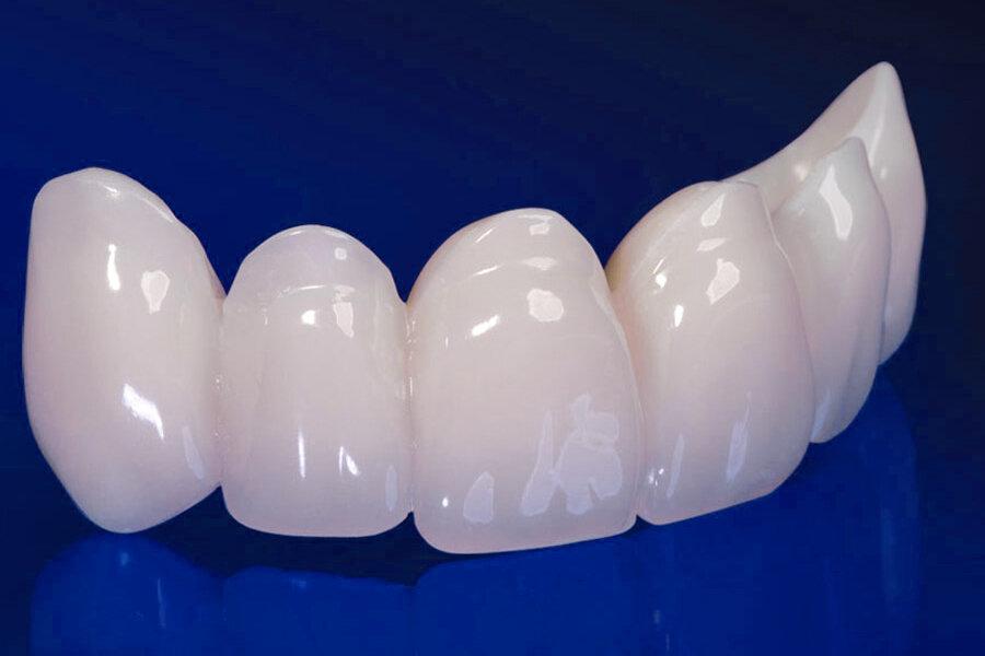 Протезирование зубов: металлопластмассовые и металлокерамические коронки и мосты с фото, симптомы аллергии