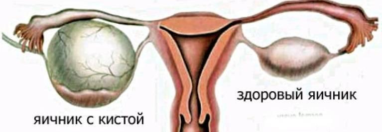 Киста круглой связки матки: симптомы и методы лечения