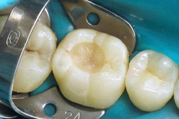 Пломбирование молочных зубов у детей, цветные пломбы в детской стоматологии