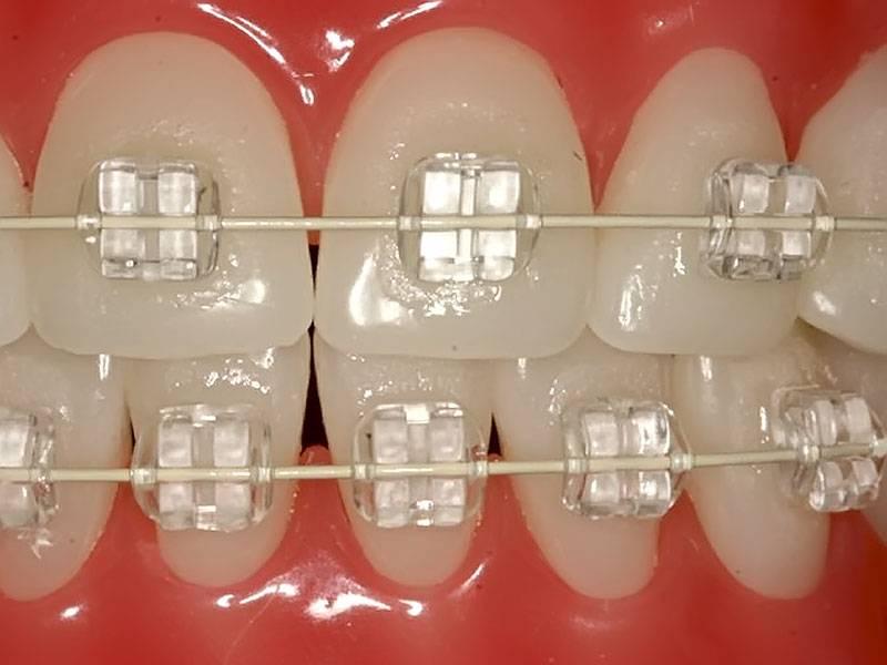 Брекеты inspire ice— незаметные сапфировые зубные конструкции
