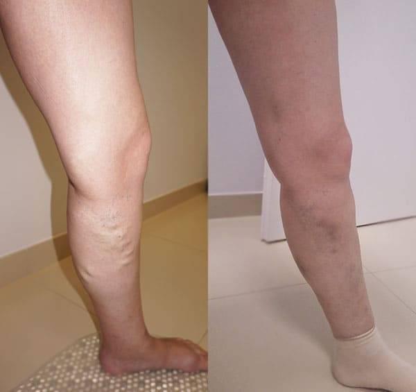 Склеротерапия как проводится и какие осложнения бывают