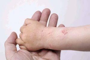 Мокнущая экзема: лечение детей и взрослых