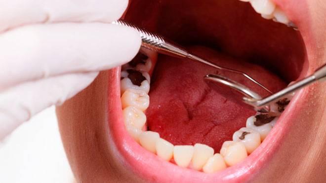 Лечение или удаление: что делать, если гниют зубы изнутри до десны или корня, какими будут последствия?