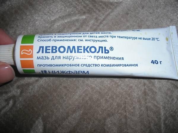 Эндометриоз и левомеколь
