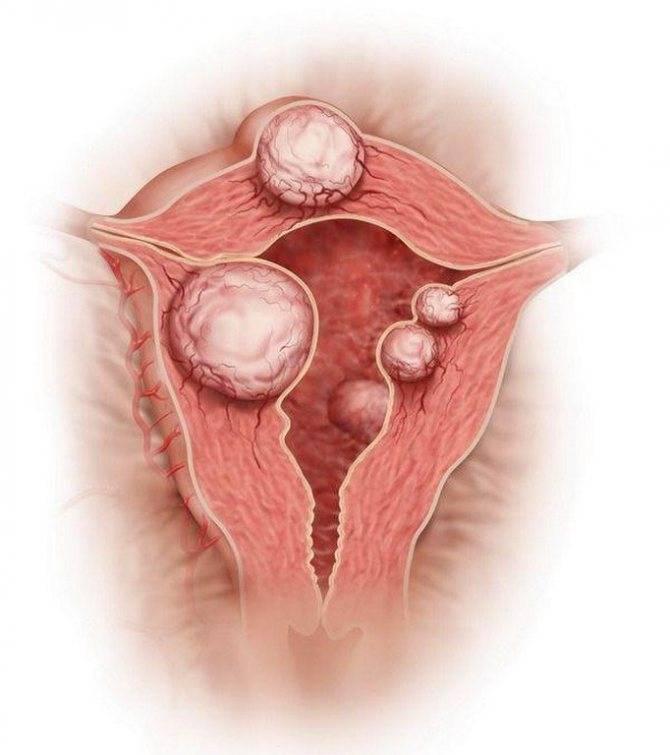 Современные взгляды на лечение множественной миомы матки