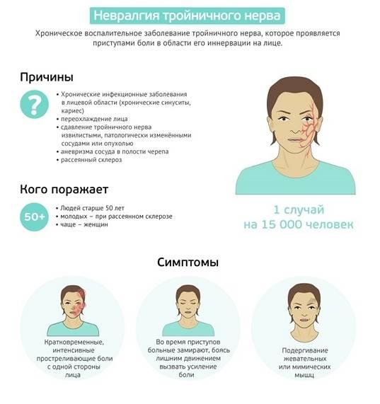 Дифференциальная диагностика невралгий тройничного нерва