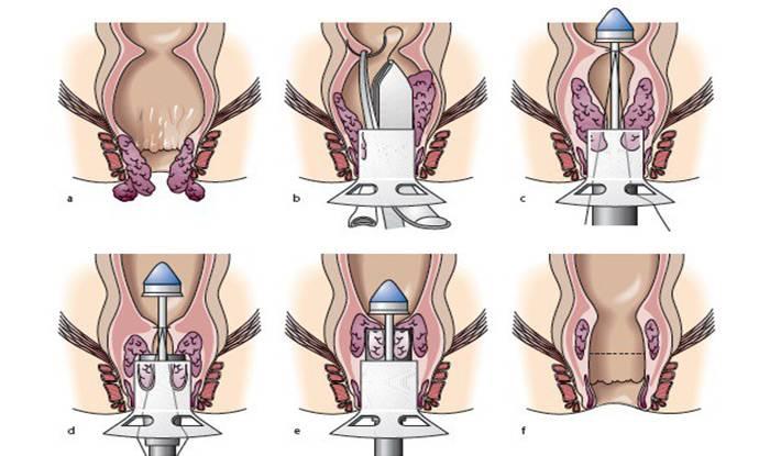Опущение стенок влагалища, причины, лечение, упражнения, операция при опущении и выпадении