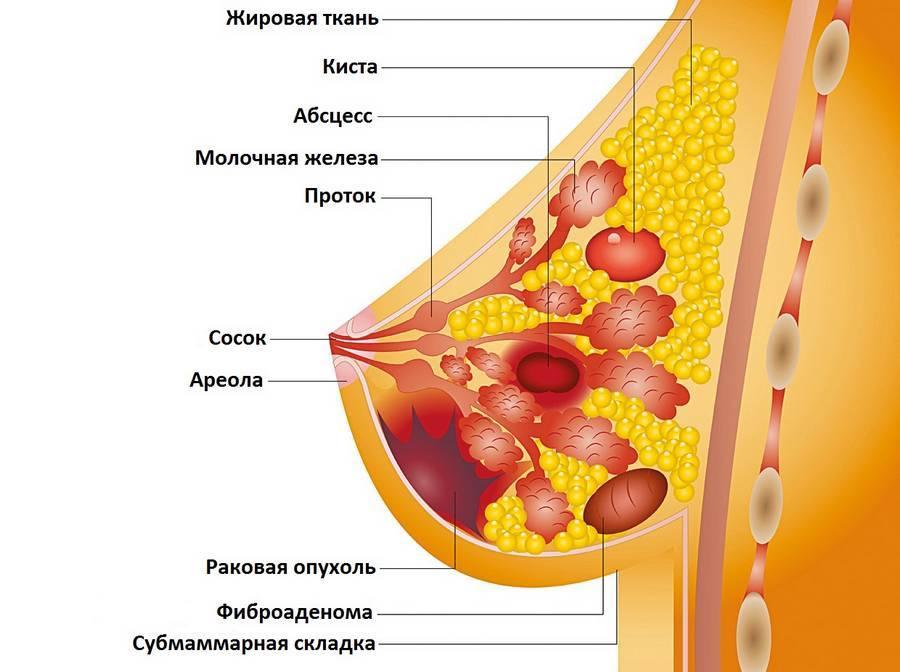 Кровь из соска при кормлении грудью, беременности и болезнях